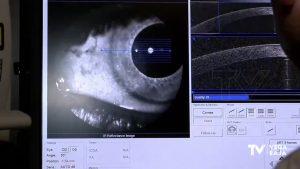 Aumento en lesiones oculares tras confinamiento y ante la exposición al sol